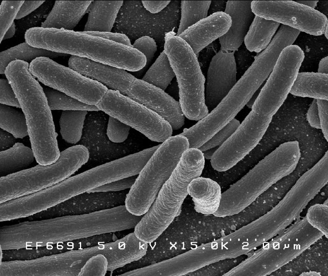Batteri della specie Escherichia Coli al microscopio elettronico (Immagine Rocky Mountain Laboratories, NIAID, NIH)