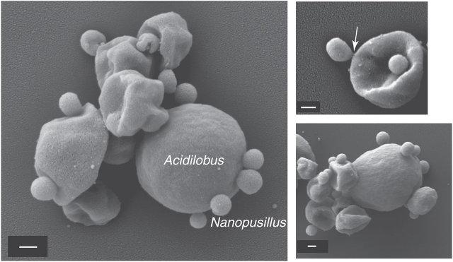 Nanopusillus acidilobi e Acidilobus (Immagine cortesia Mircea Podar et al.)