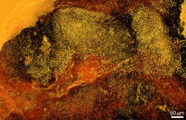 Tomografia di Ramathallus lobatus (Immagine cortesia Stefan Bengtson et al.)