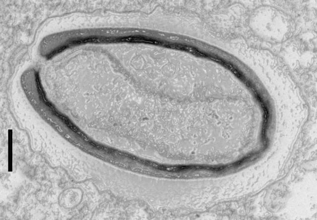 Pandoravirus Quercus (Immagine cortesia IGS- CNRS/AMU)