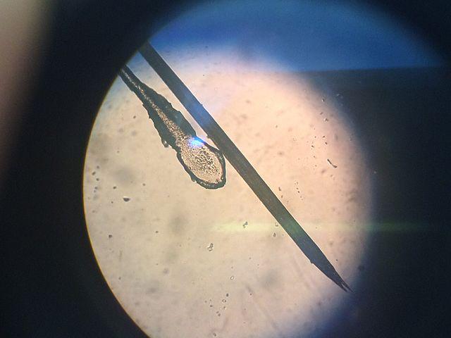 Un bulbo e l'estremità di un capello (Immagine Sly.cooper91)