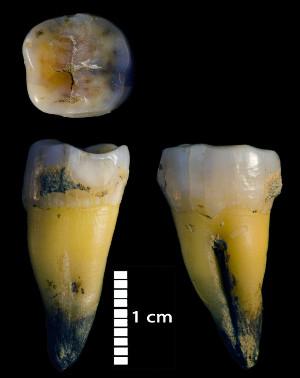 Un molare inferiore di uno degli umani moderni scoperti nella grotta di Bacho Kiro